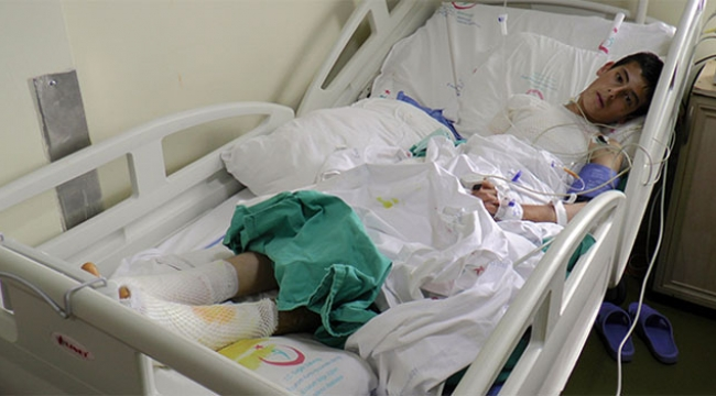 Yüksek gerilim hattına sopayla dokunan çocuk akıma kapıldı