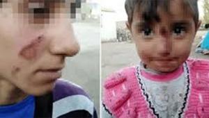 Eşinin ve 3 yaşındaki kızının yüzünü canice yaktı