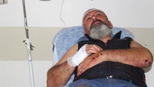 Esrarengiz kazanın ardından öldüresiye dövüldü