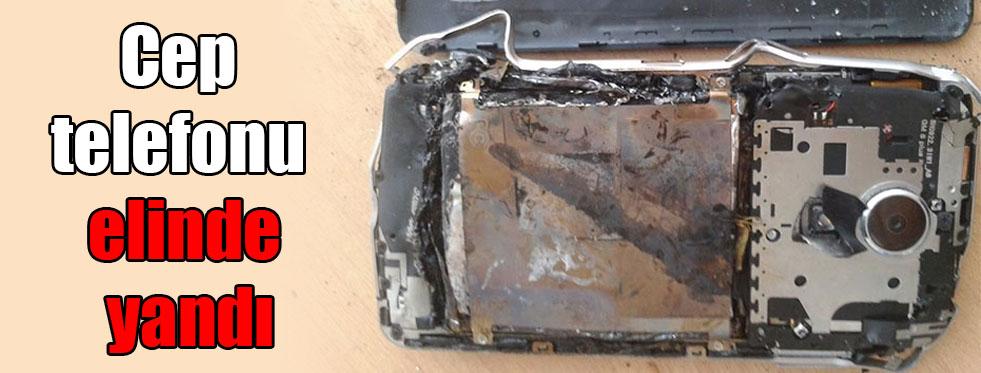 Cep telefonu elinde yandı